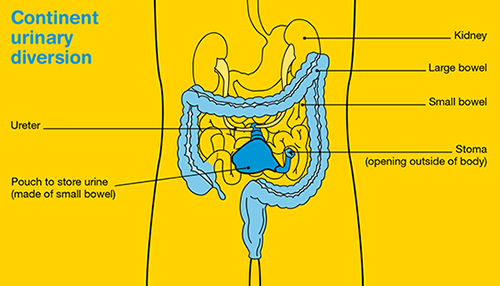 Continent urinary diversion - a procedure for bowel cancer