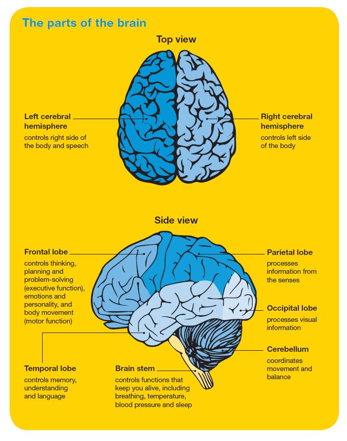Brain tumours - Cancer Council Victoria