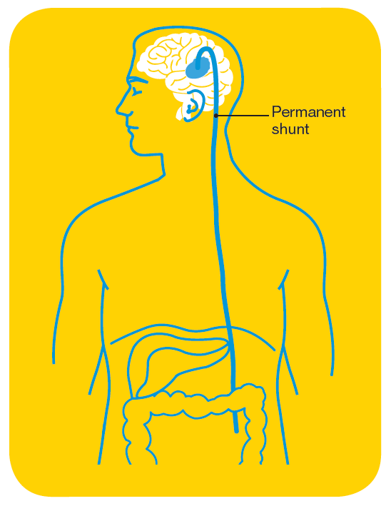 Treatment for brain tumours | Cancer Council Victoria