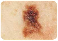 Variation in colour around the border of a melanoma