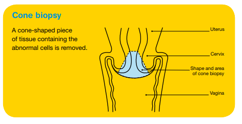 Diagnosing cervical cancer | Cancer Council Victoria