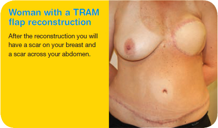 Woman with a TRAM flap reconstruction