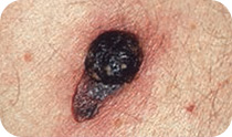 Nodular melanoma – black nodule or lump that has grown quickly